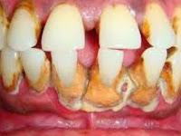 8 Cara Menghilangkan Karang Gigi Yang Mengeras Secara Alami