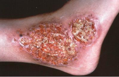 炎性肠病患者伴发的坏疽性脓皮病的足踝部位典型的枪灰色溃疡
