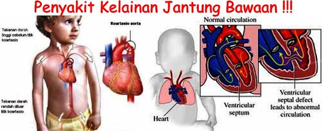 Penyebab Penyakit Jantung Bawaan ( PJB ) serta Pengobatannya