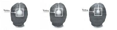 5 Kekuatan Ekstra Kirkland Minoxidil Untuk Solusi Pasokan Rambut Pria Selama 6 Bulan