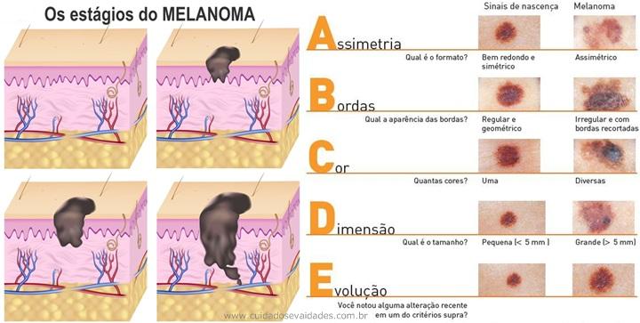 Prevenção do câncer da pele La Roche-Posay