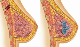 Причини за възникване на мастопатия