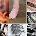 AWAS! 5 Jenis Ikan Yang Paling Gatal Dan Angin. Kepada Pesakit Ekzema, Wanita Bersalin Perlu Elak Dari Memakan Ikan Ini.. Cegahlah Sebelum Terlambat...
