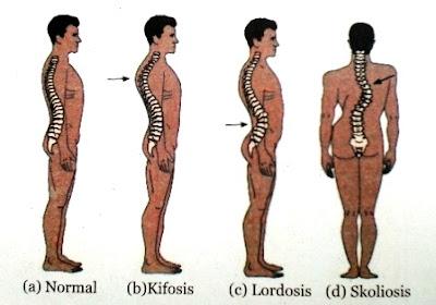 kiposis, lordosis, dan skoliosis pada tulang belakang