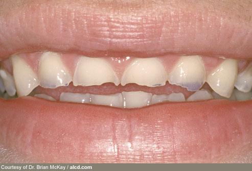 Periodontal Associates Dental Implant Team Anorexia Nervosa