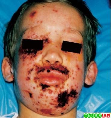 Eczema herpeticum caused by herpes simplex virus.