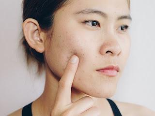 Como evitar a mascne