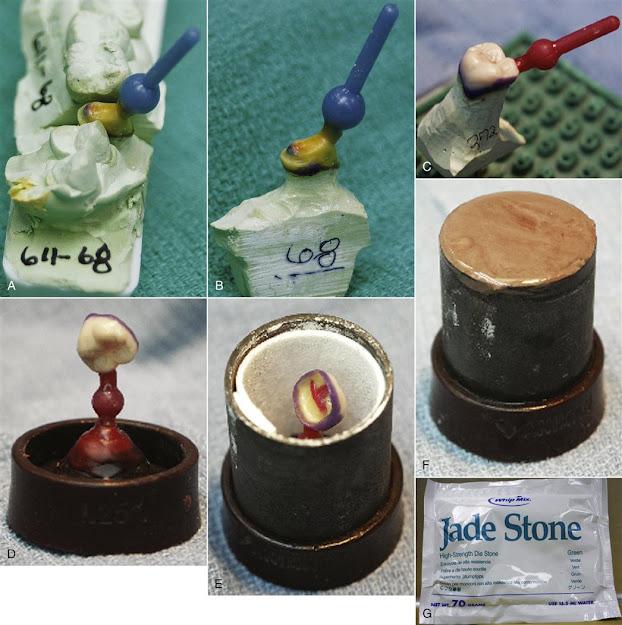 conventional pfm dental restoration manufacturing