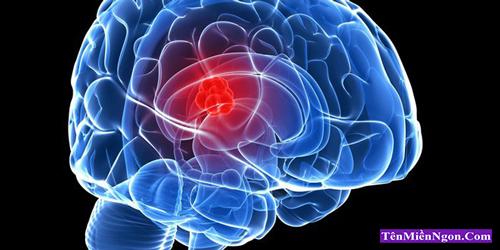 Triệu chứng của ung thư Não, u Não