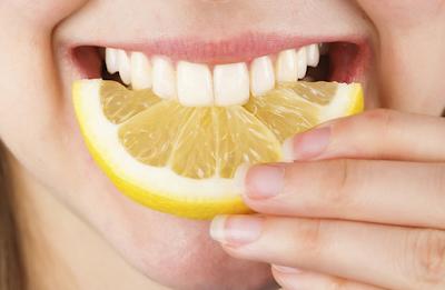 natural teeth whitening teeth whitening Treatment teeth whitening overnight