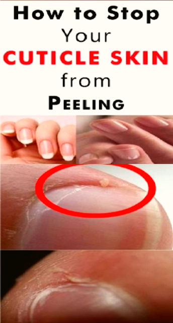 How to Stop Your Cuticles From Cracking and Peeling After a Manicure!!!