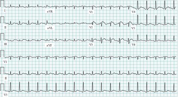 Typical Brugada syndrome ECG