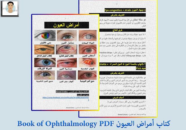 كتاب أمراض العيون Book of Ophthalmology PDF