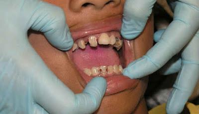 enam obat sakit gigi anak yang manjur dan terbaik