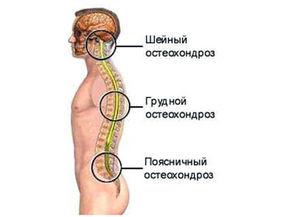 Что такое остеохондроз и каковы причины его появления?
