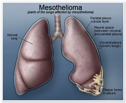 Mesothelioma, what is it?