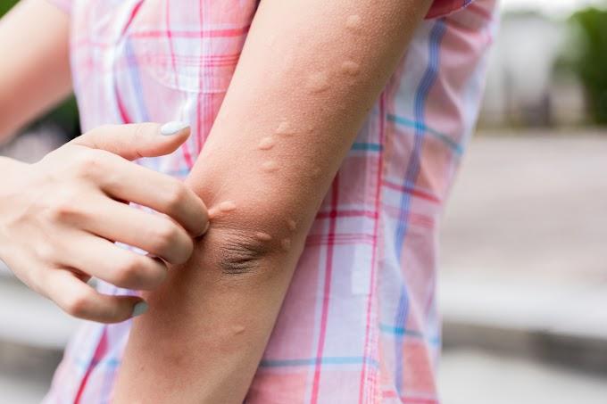 Kit csípnek jobban a szúnyogok, és kit az ágyi poloskák? A rovaroknak is vannak a kedvenceik