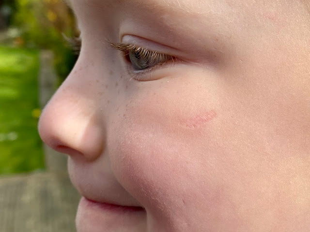 a close up of my daughter's face showing a scar on her cheek where she hurt herself and it was glued together badly by the doctor