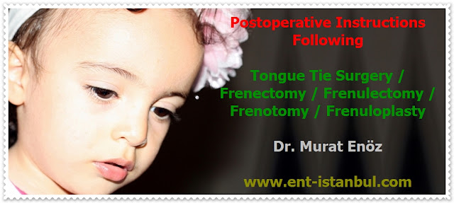 Tongue Tie (Ankyloglossia) Definition - Symptoms of Tongue Tie - Ankyloglossia Related Health Problems - Diagnosis of Tongue Tie - Treatment of Tongue Tie - Tongue Tie Surgery - Frenectomy - Frenulectomy - Frenotomy - Frenuloplasty - Post-operative Exercises for Tongue Tie Surgery - Post-Operative Instructions for Tongue Tie Surgery - Bloodless Tongue Tie Operation