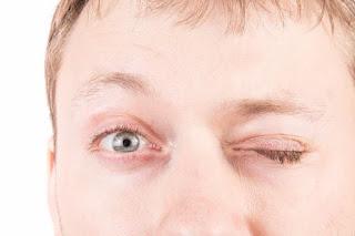 Homem perde a visão de olho após 'um ato sexual forte'