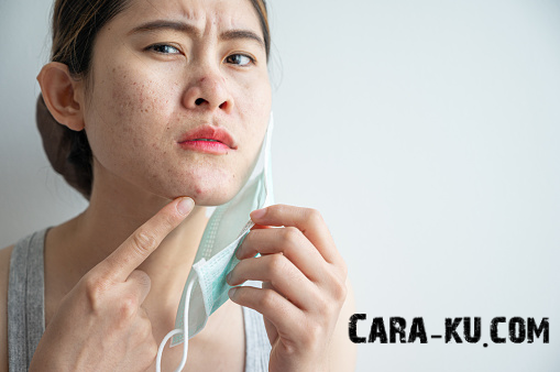 12 Cara Cepat Menghilangkan Bruntusan Di Wajah Dengan Bahan Alami