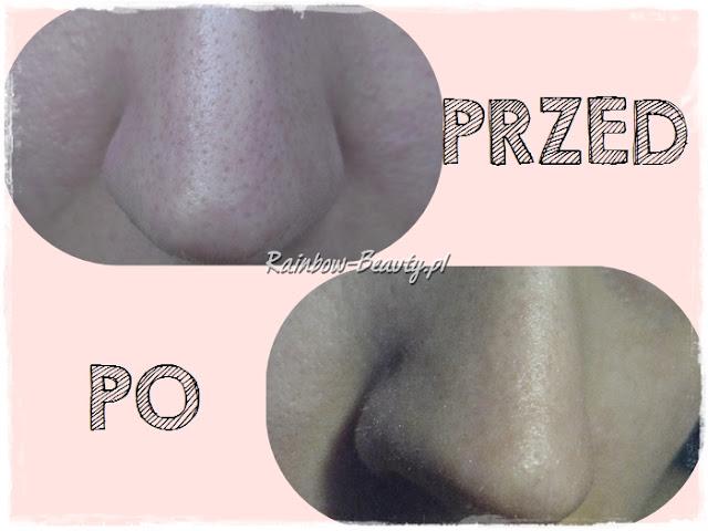 holika-holika-pig-nose-plastry-nos-opinie-blog-efekty-dzialanie-zaskorniki