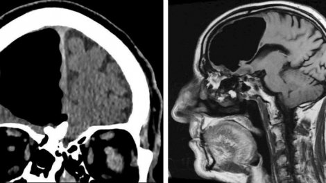 Shocked Doctors Discover Large Air Pocket In Patient's Brain.