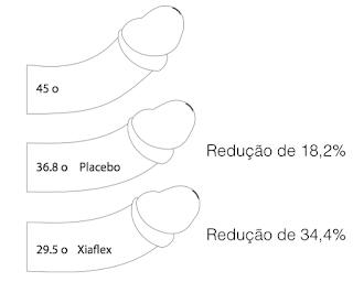 Xiaflex Fase 3