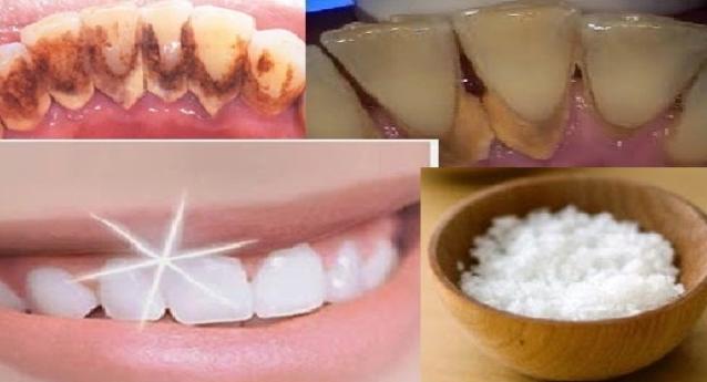 Cara Ampuh Memutihkan Gigi Hingga Putih Bersinar Secara Alami Dan