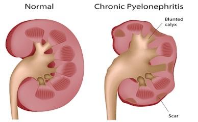 Böbrek Enfeksiyonu - ? Piyelonefrit Nedir,Neden Olur,Nasıl Tedavi Edilir ?