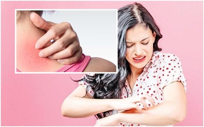 Tanısı zor konulan dermatolojik hastalıklara dikkat