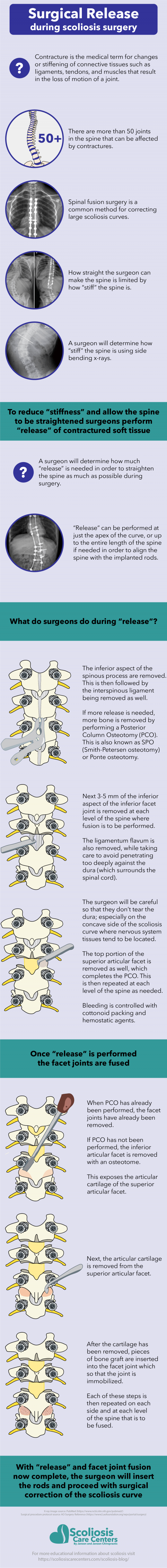 Surgical Release During Scoliosis Surgery #infographic