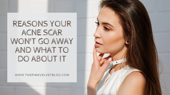 Reasons Your Acne Scar Won't Go Away and What to Do About It