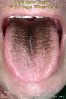 Black Hairy Tongue - BHT - Lingua Villosa Nigra - Black Hairy Tongue Causes - Black Hairy Tongue Treatment - Black Hairy Tongue Symptoms - What is black hairy tongue?