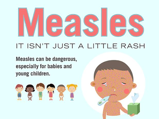 Measles - Symptoms and causes