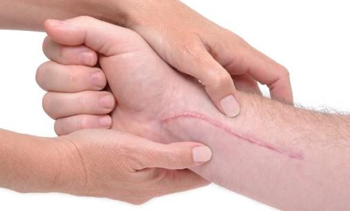 tips menghilangkan luka bakar
