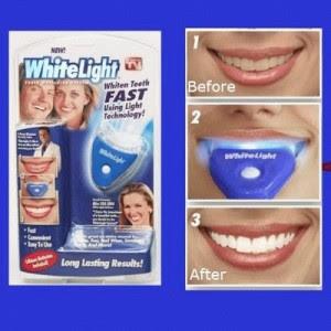 Cara Membuat Gigi Tampak Lebih Putih Cemerlang Dengan Mudah Dan