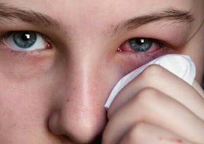 First Aid: Best Ways of Getting Rid of Foreign Object in The Eyes