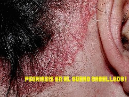 Tratamiento Casero para Psoriasis en el Cuero Cabelludo