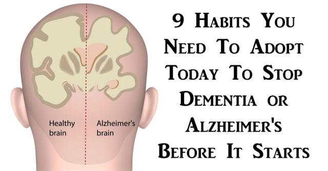Prevent Alzheimer