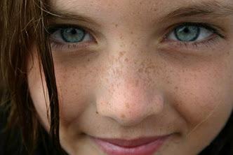 8 Cara menghilangkan flek hitam di wajah sampai tuntas