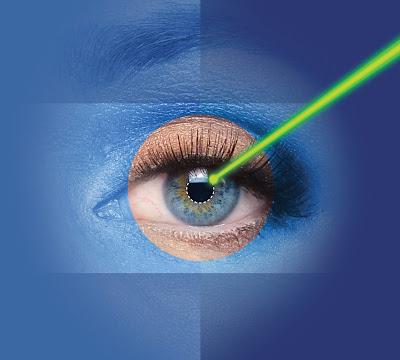 Laser cataract surgery Delhi