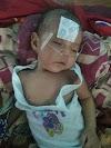 Sultan Hamid (3 Bln) Penderita Kelainan Jantung  Butuh Bantuan Untuk Biaya Perobatannya
