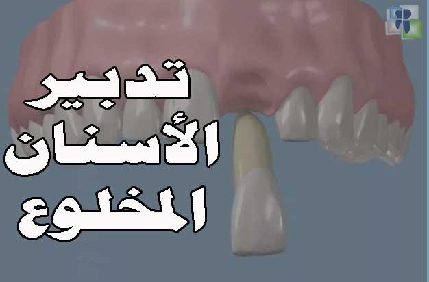 تدبير خلع الاسنان وبروتوكول المعالجة والجبائر