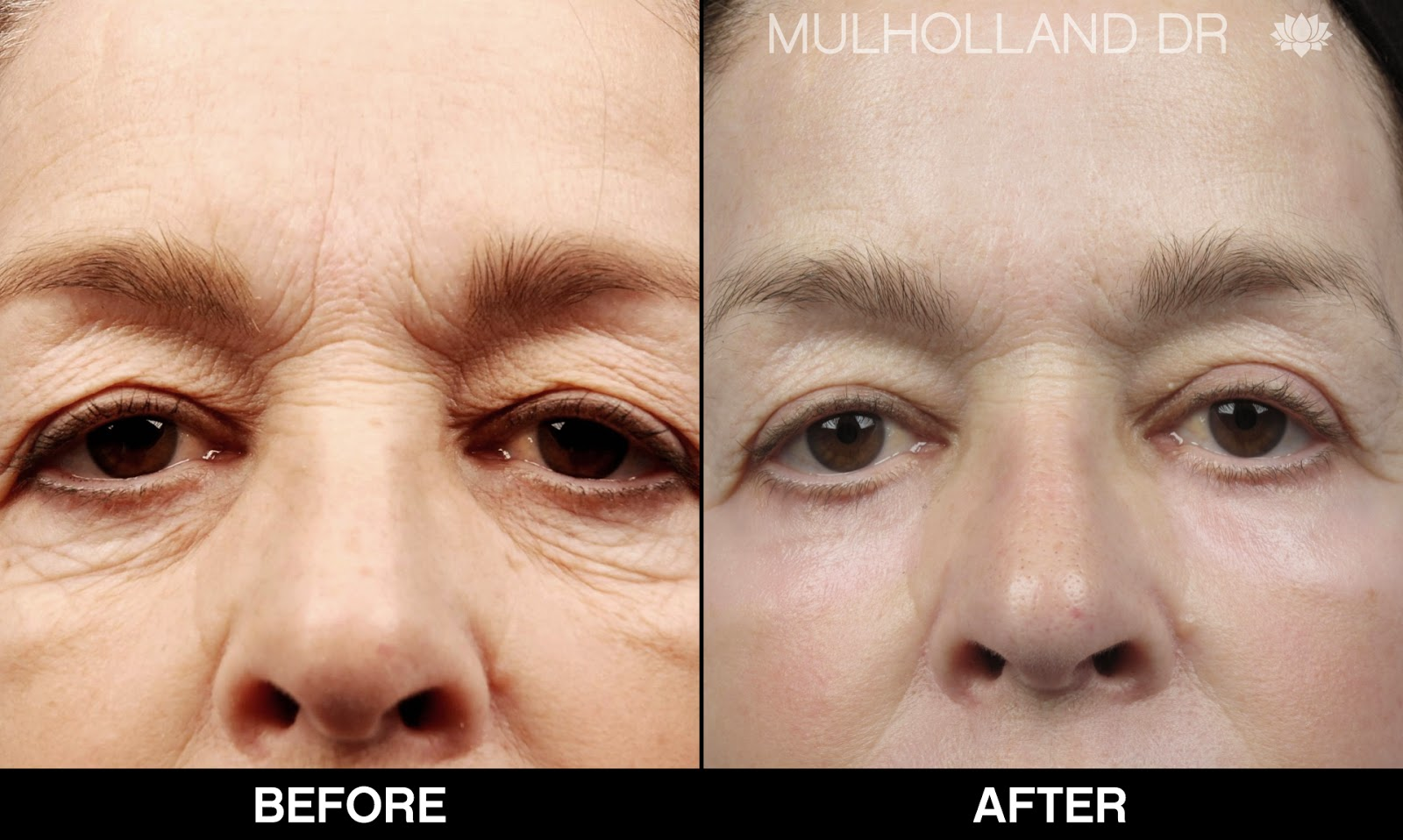 Before and after photos of a Toronto eyelid surgery patient
