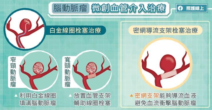 腦動脈瘤微創腦血管介入治療