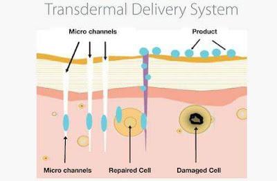 Metode Pengobatan Transdermal dengan Varash Healing Oil