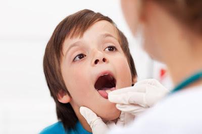 Mengenal Apa Saja Gejala Dan Penyebab Tonsilitis Pada Anak