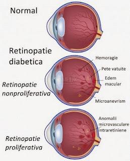 retinopatia proliferativa