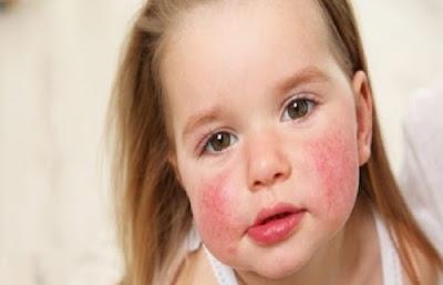 4 Jenis Sayur dan Buah Yang Dapat Memicu Gejala Alergi Pada Anak – Anak